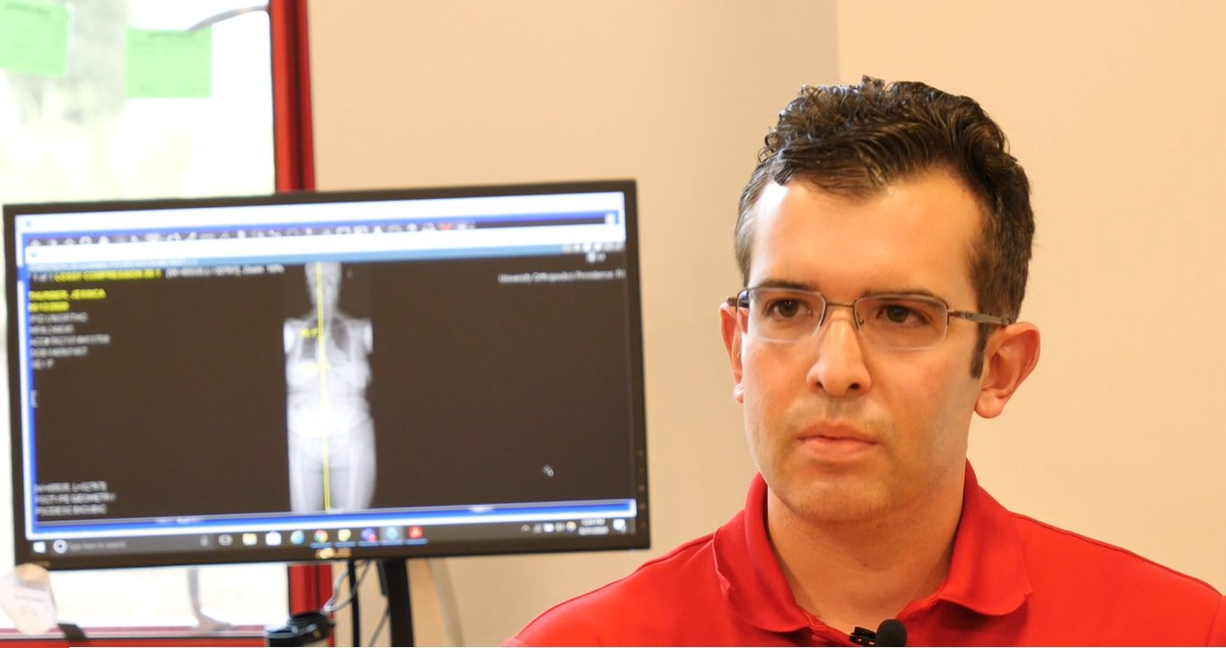 UOI PT Stephen Cinquegrana details unique scoliosis treatment